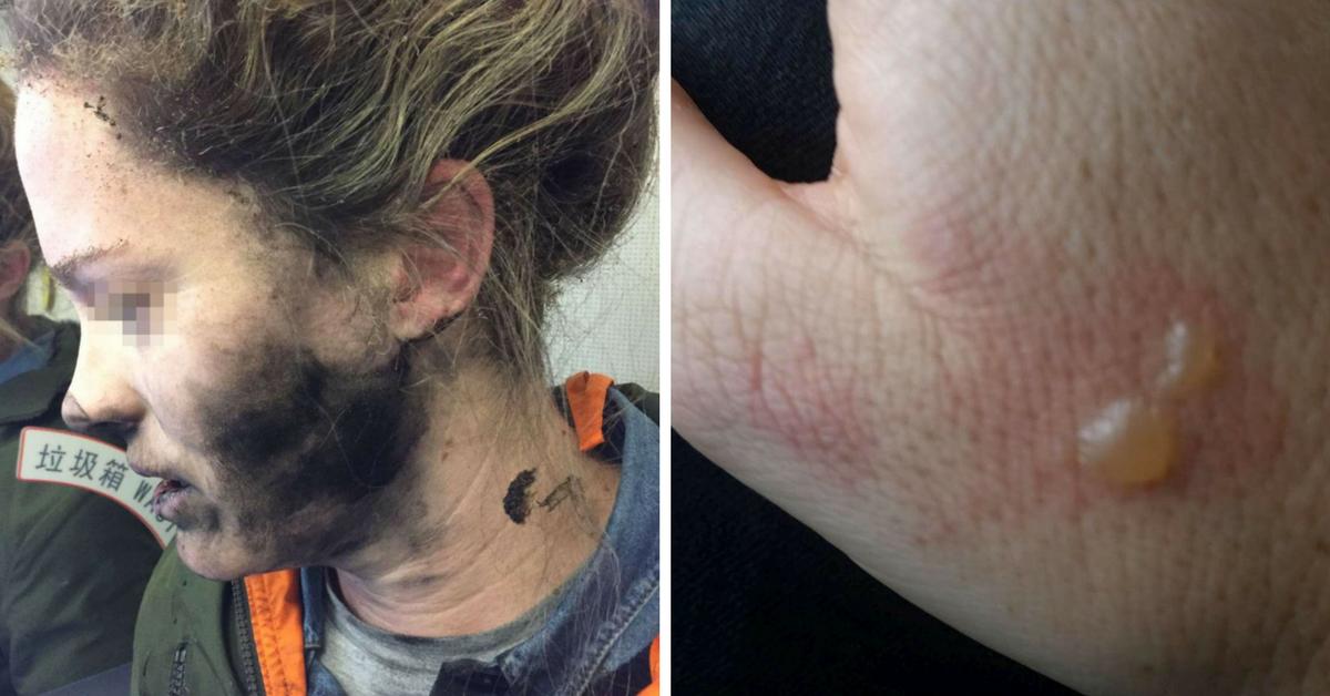 Esplodono gli auricolari di una donna australiana durante il volo