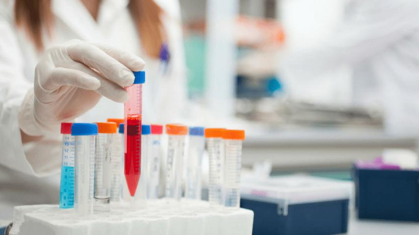 virus malattia x laboratorio