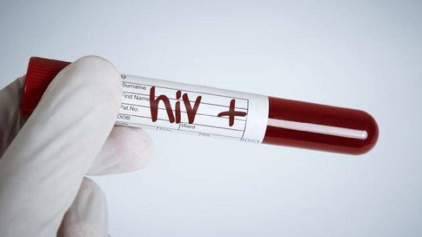 HIV, provetta sangue, immagine di repertorio