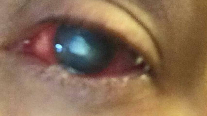 L'occhio infettato della donna dopo che il parassita è entrato in contatto con le lenti a contatto. Fonte: Sito web cherrycreekschools.org