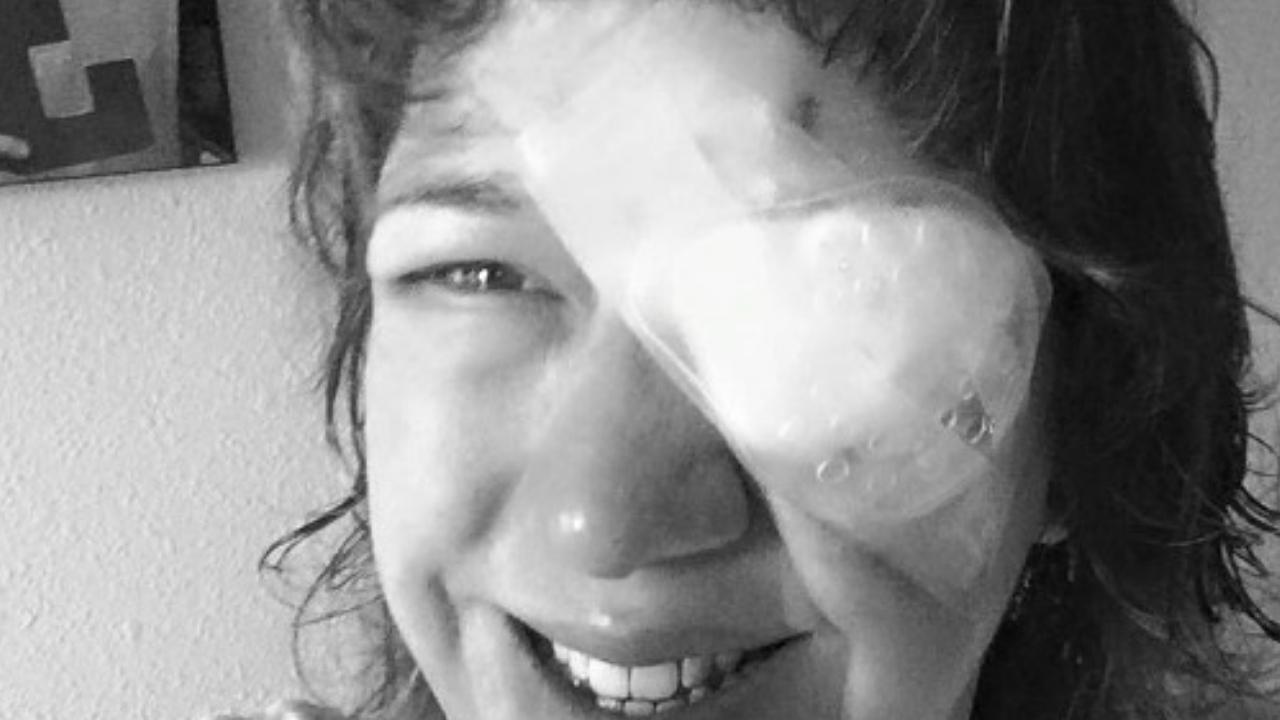 Nuota in piscina con le lenti a contatto e perde la vista da un occhio