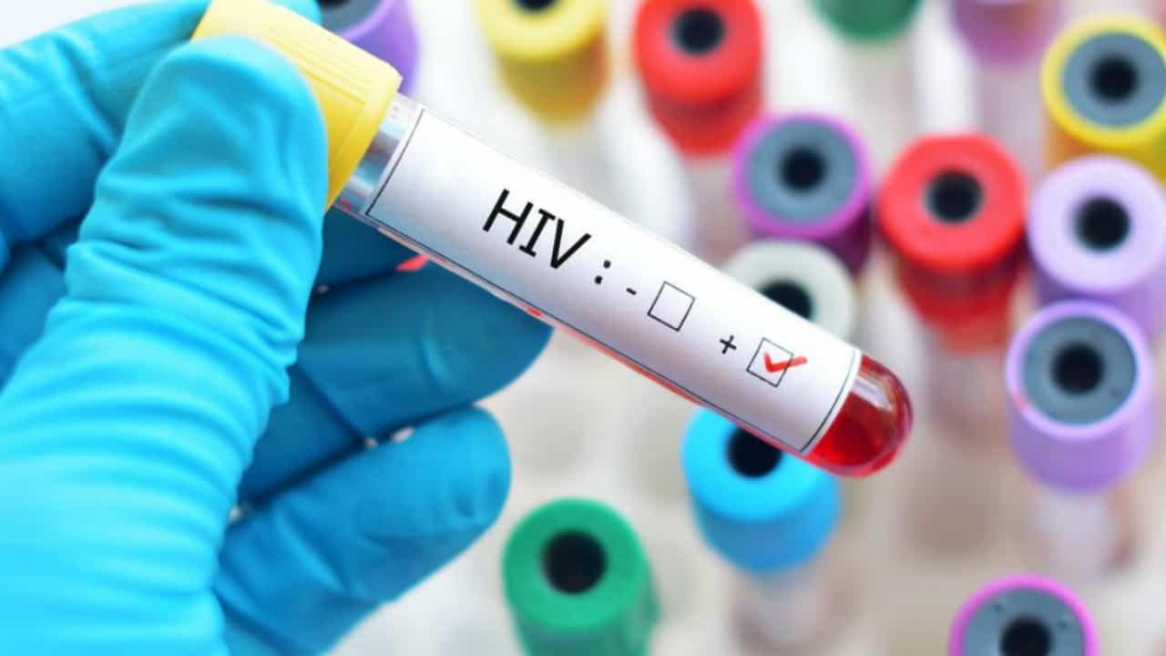 Si vendica dell'ex contagiandola con l'aids