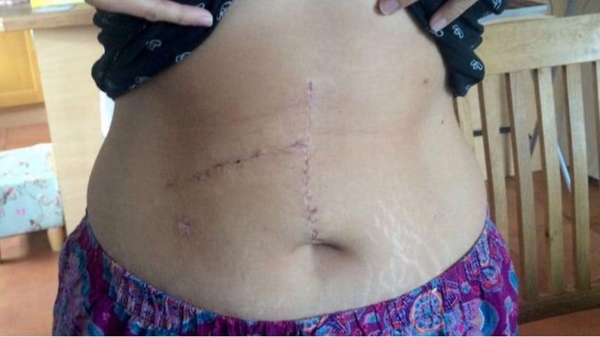 La cicatrice di Jemma Joslyn dopo l'operazione.