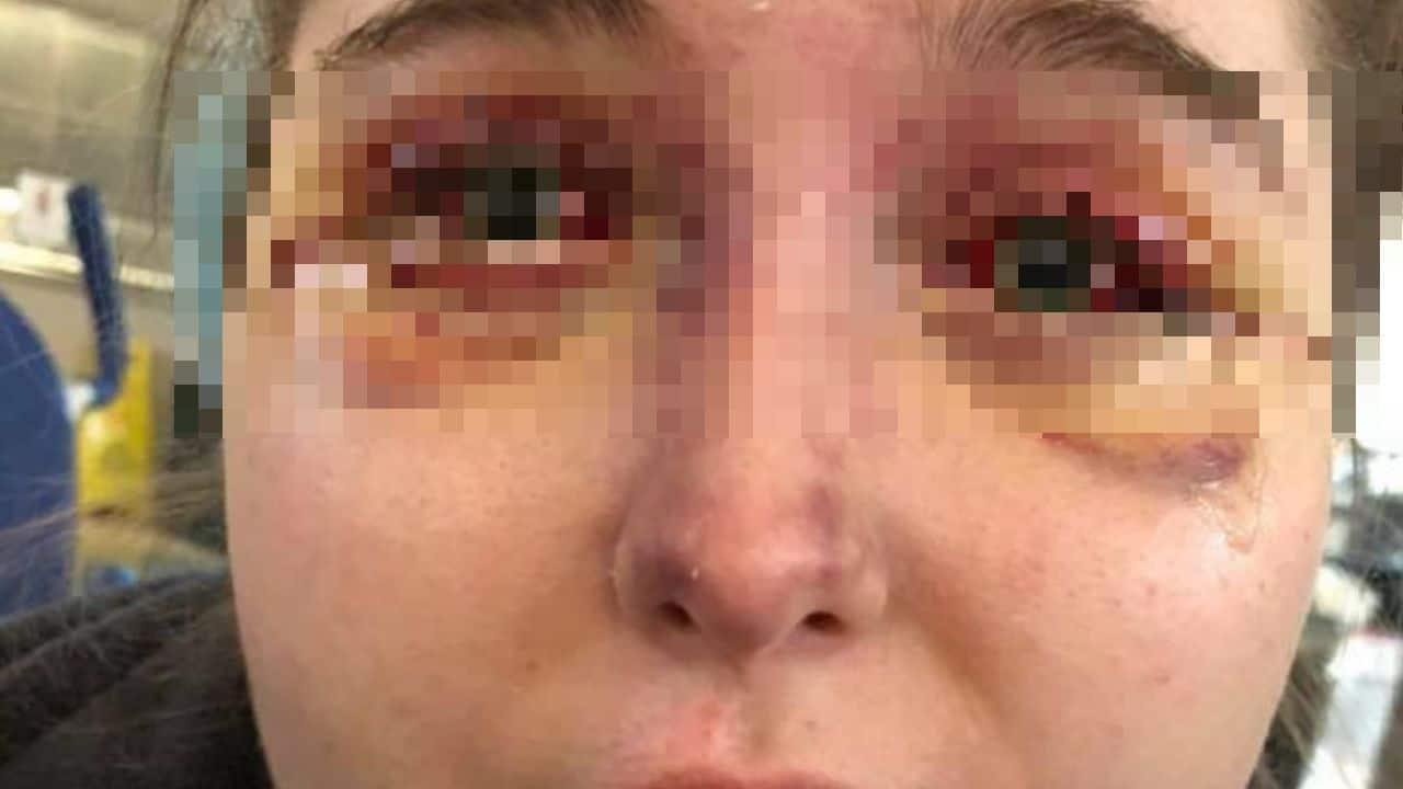 occhi malattia misteriosa