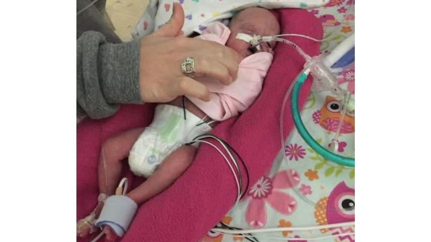 Gemelline da record: sopravvissute nonostante siano nate al quinto mese di gravidanza
