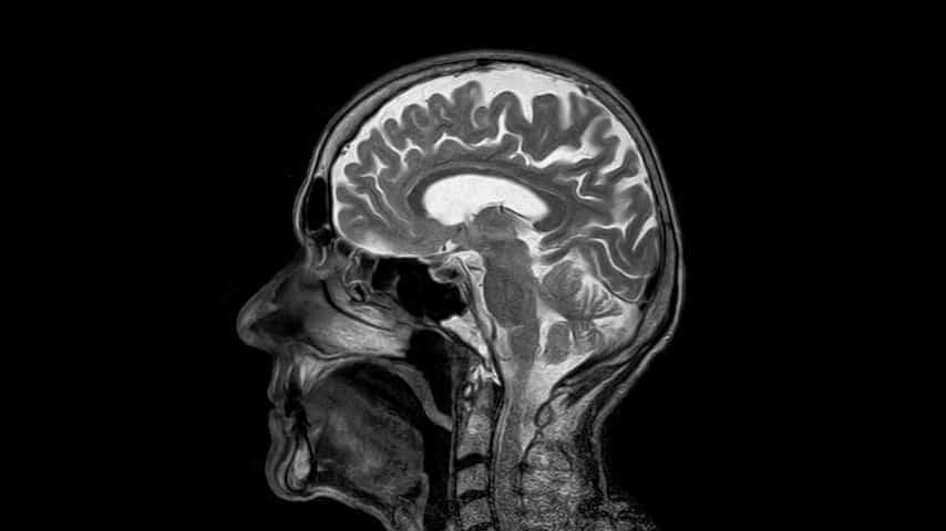 cervello, ictus
