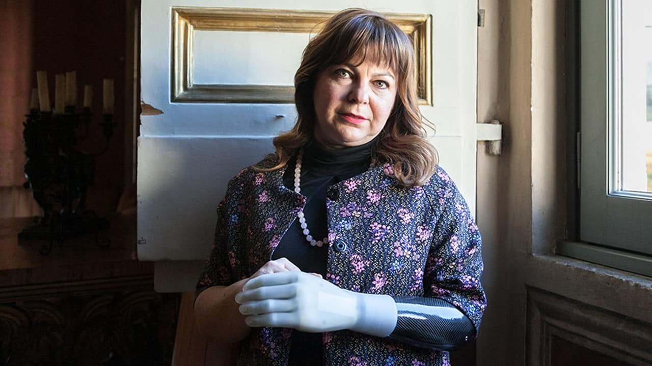 Clara Puleo, mano bionica