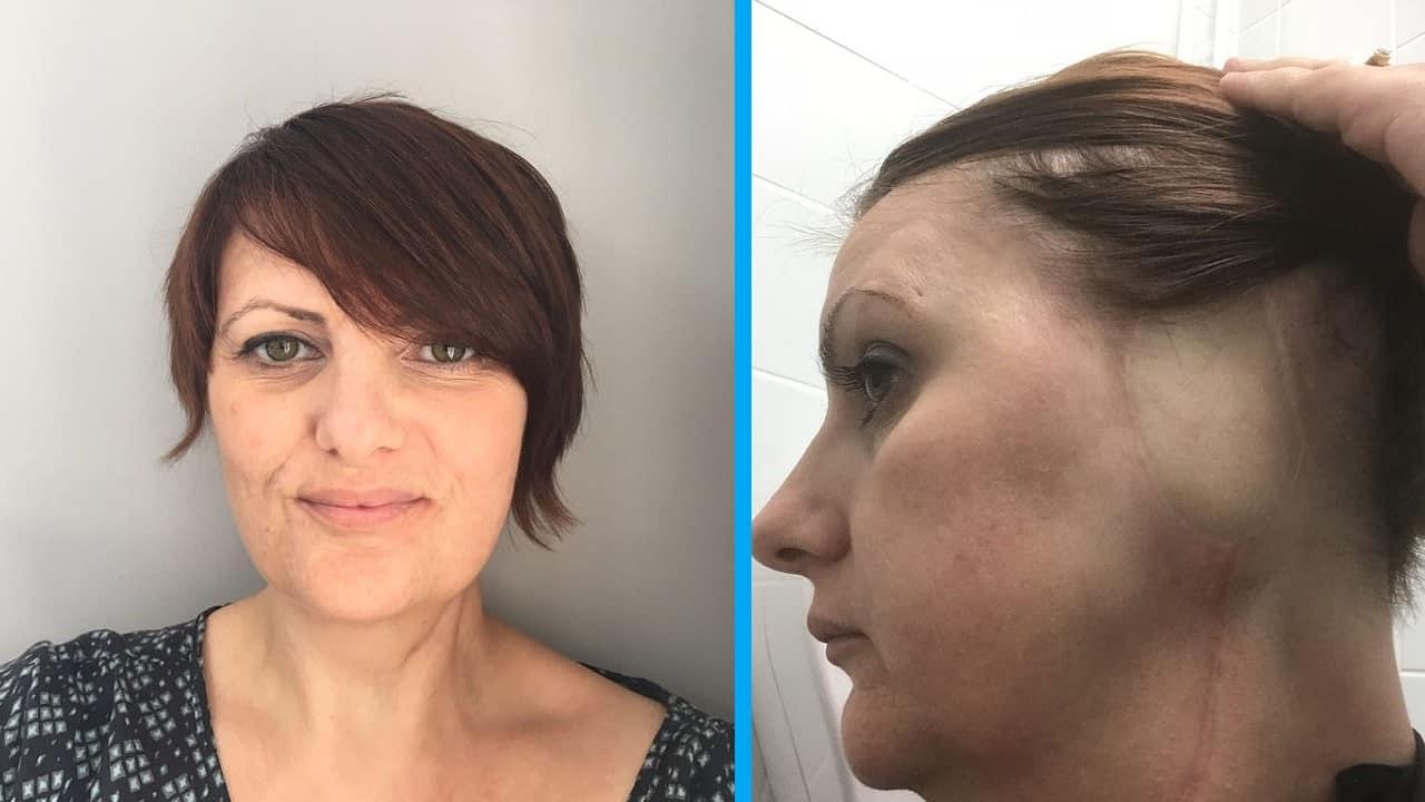 I medici le amputano l'orecchio: per anni avevano ignorato il melanoma
