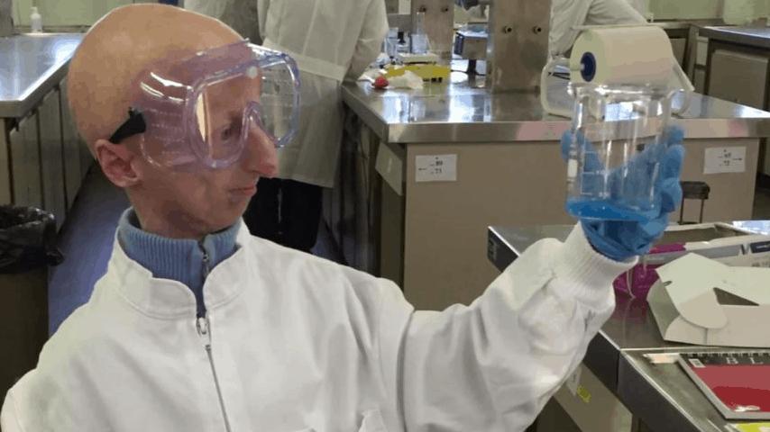 L'annuncio di Sammy Basso: la progeria si combatte modificando i geni