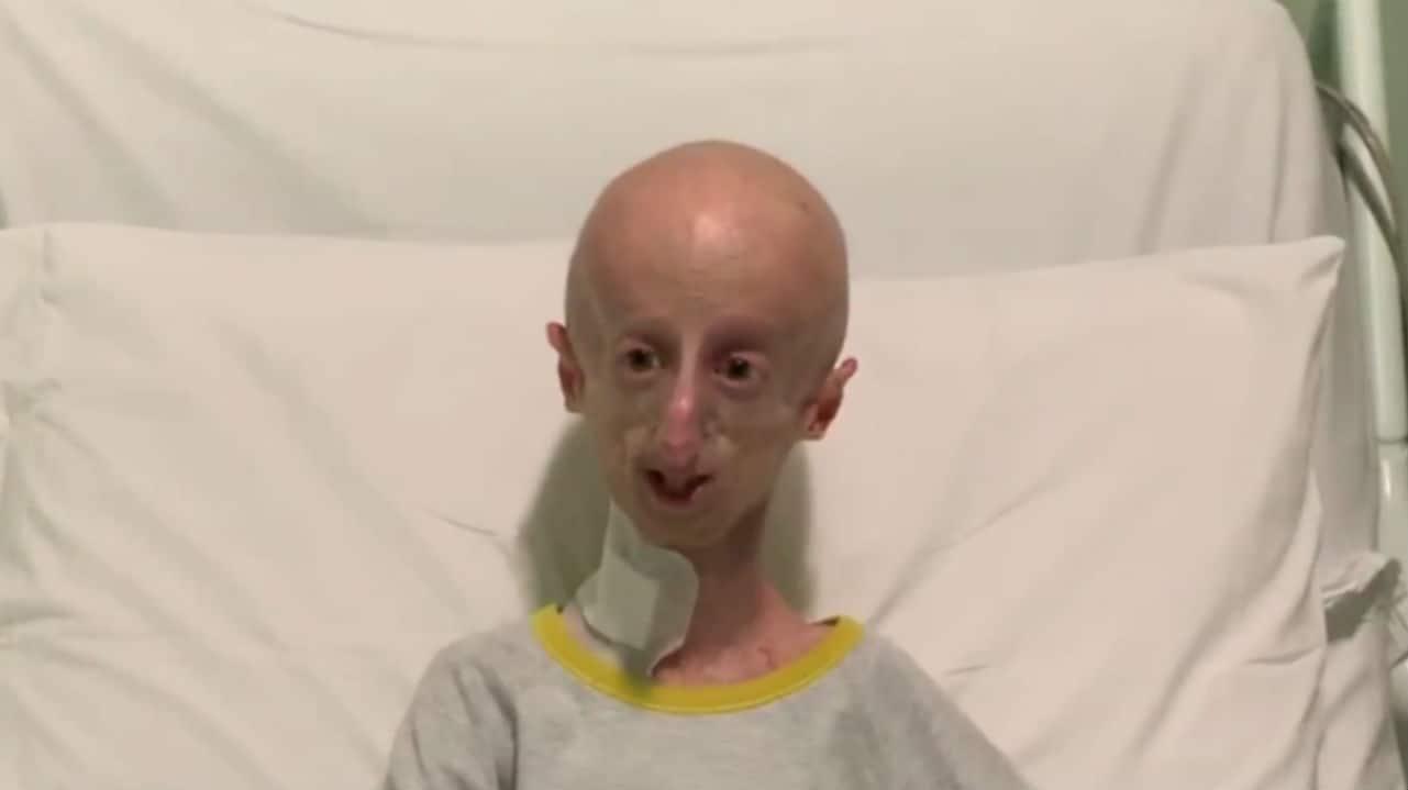"""Sammy Basso dopo l'intervento: """"Ora abbiamo una nuova speranza"""""""