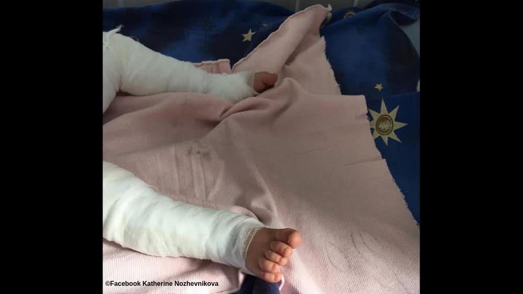 Il bimbo di un anno rimasto ustionato dopo essere caduto nell'acqua bollente è morto