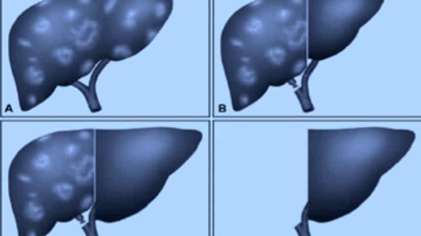 fegato trapiantato