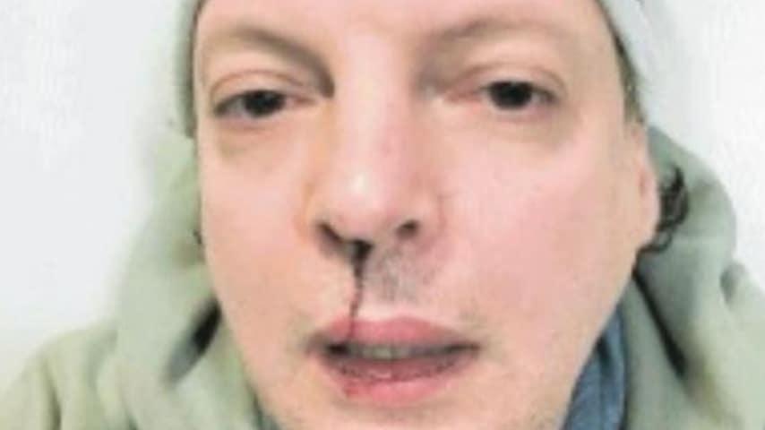 La foto di Dado dopo l'aggressione