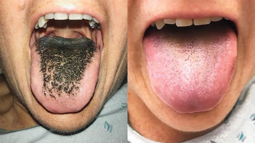 Lingua villosa e lingua sana