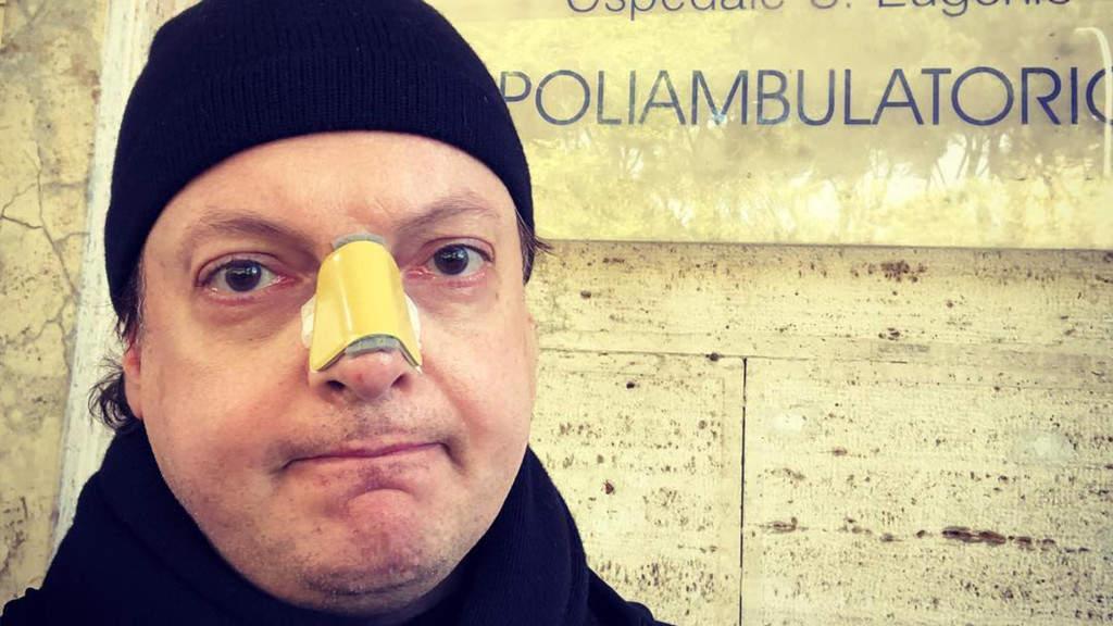 La foto pubblicata su Instagram da Dado, davanti al Poliambulatorio con una vistosa medicazione al naso