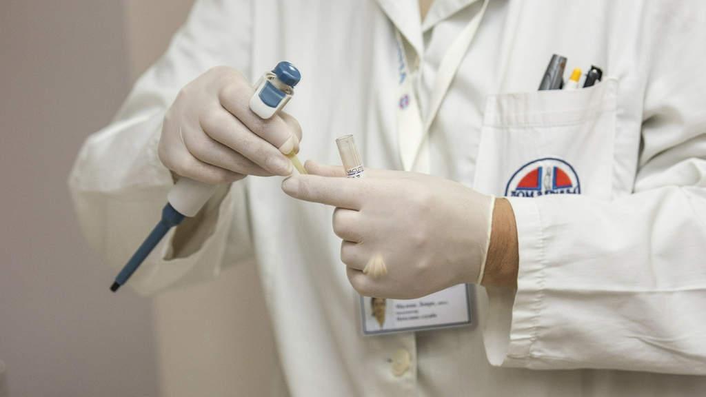 mani di un medico con i guanti e una provetta