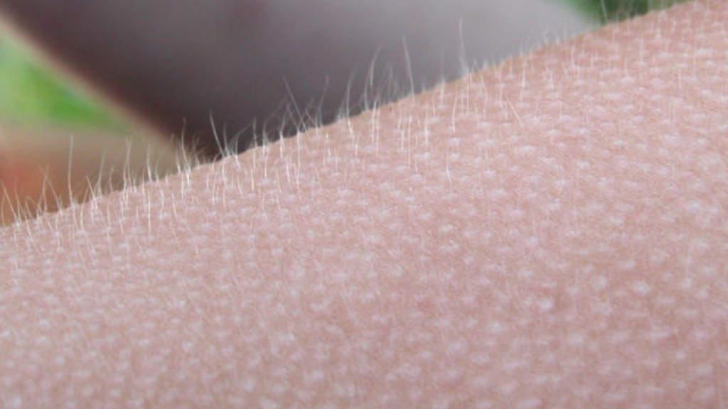 Persona con la pelle d'oca ascoltando la musica: il suo cervello ha una struttura particolare