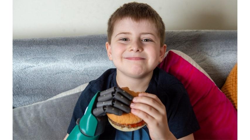 Il più piccolo bambino al mondo ad avere un braccio bionico: Freddie Cook