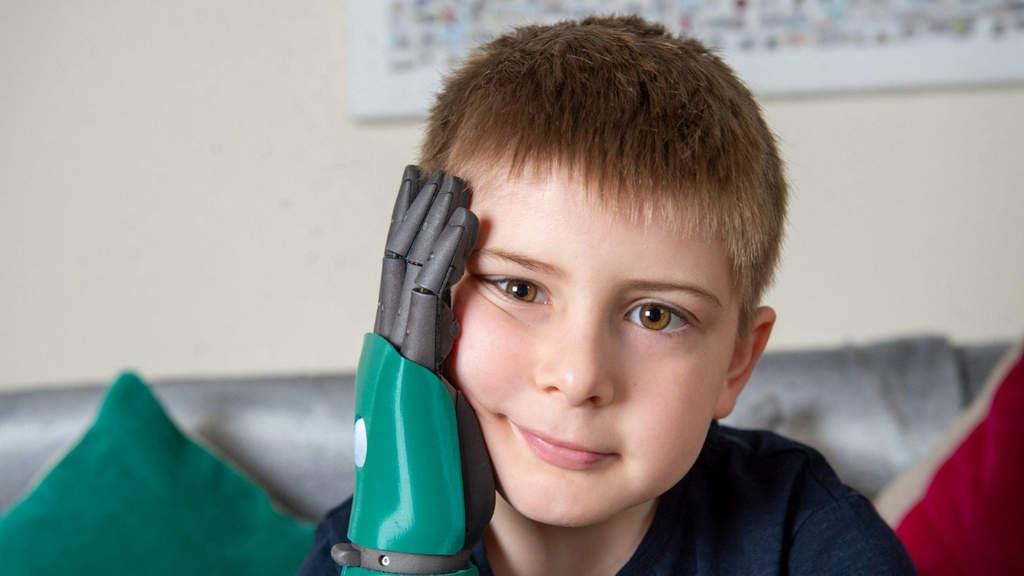 Il primo bambino al mondo ad avere un braccio bionico: Freddie Cook