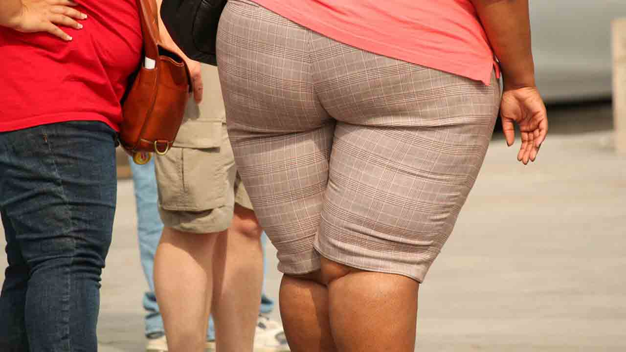 gambe di una donna che soffre di obesità