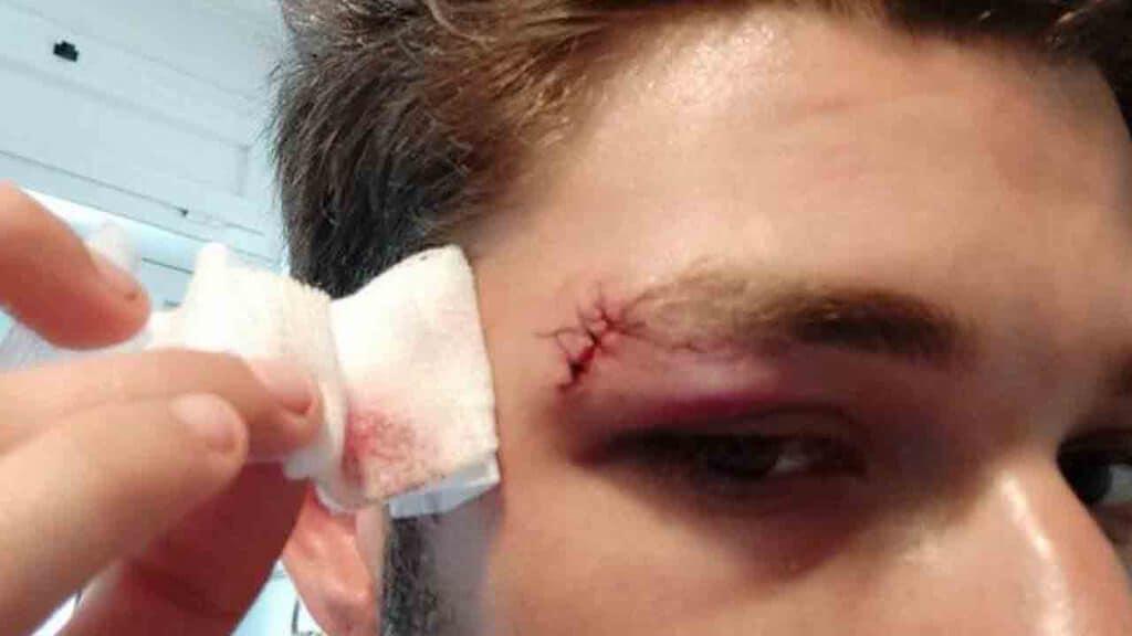 ferita al sopracciglio di David Habib