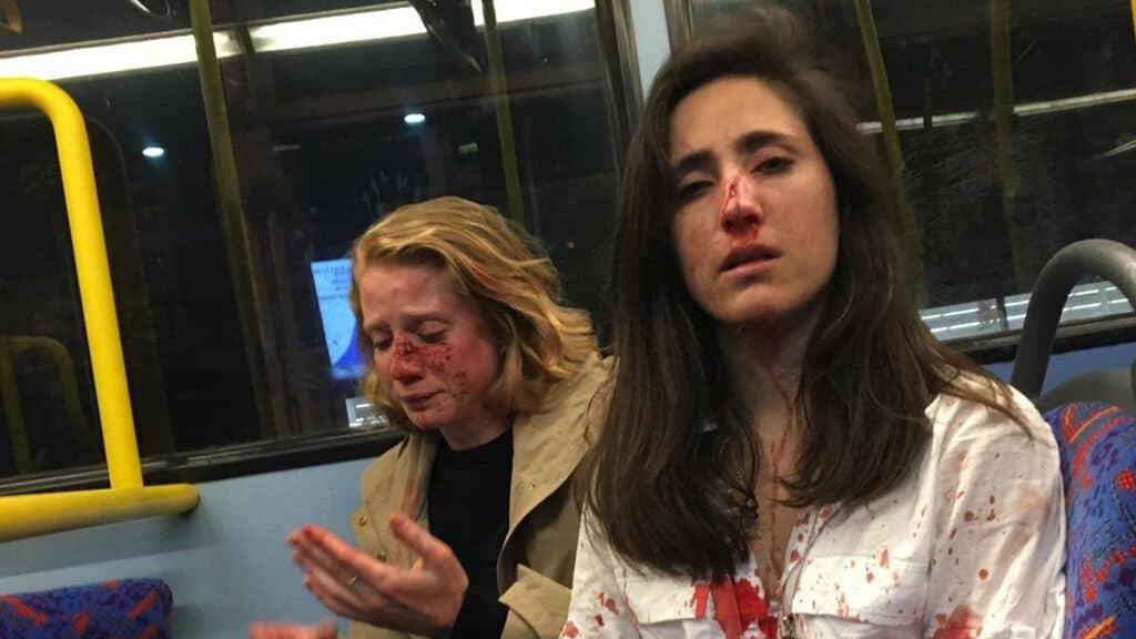 le due ragazze aggredite a londra melania e chris