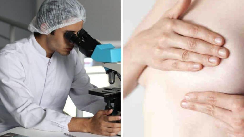 ricercatore che guarda al microscopio e donna che fa autopalpazione per il tumore