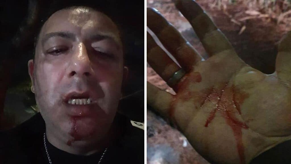 Il giornalista Pino Grazioli ha denunciato l'aggressione e le minacce di morte subite nella Terra dei Fuochi campana, dove bruciano illegalmente i rifiuti (Foto Facebook)