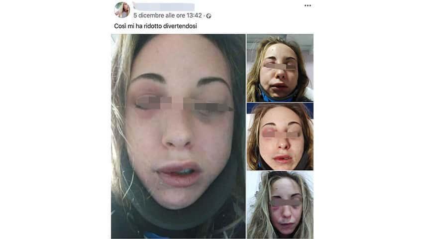 Post di denuncia della ragazza di Bastia Umbra su Facebook