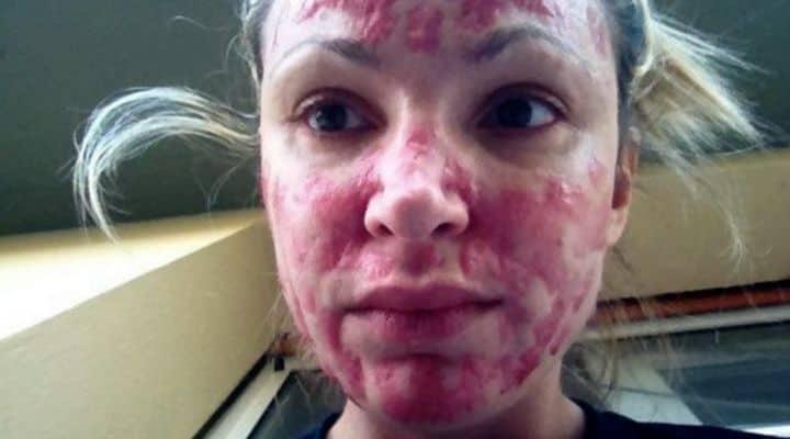 La modella Cristina Guidetti dopo l'intervento