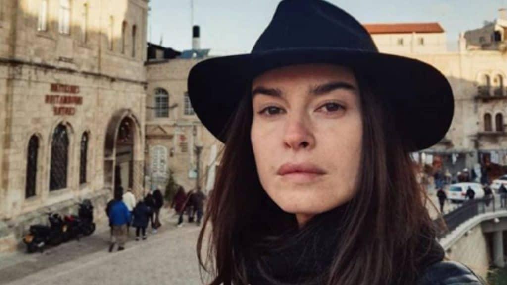 """Kasia Smutniak sulla vitiligine: """"Per guarire mi sono rivolt"""