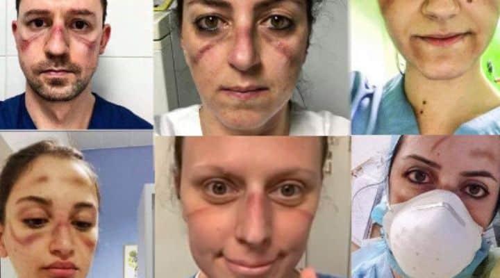 coronavirus, i volti tumefatti del medici italiani