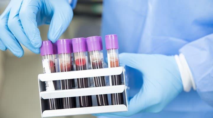 test, esami del sangue
