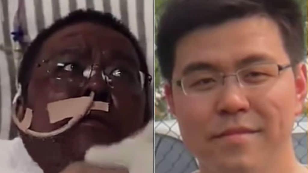foto doppia del dottor hu weifeng dopo il covid e prima di essere trovato positivo