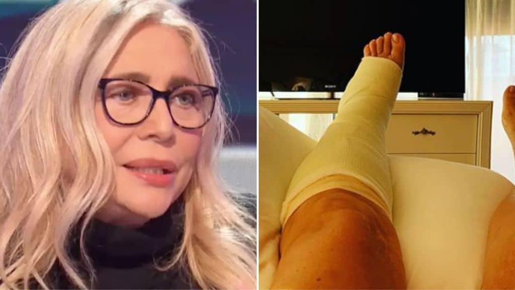 Primo piano di Mara Venier e il piede rotto