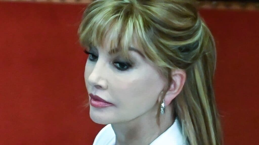 Milly Carlucci affetta da EPP, la rara malattia di chi è allergico al sole
