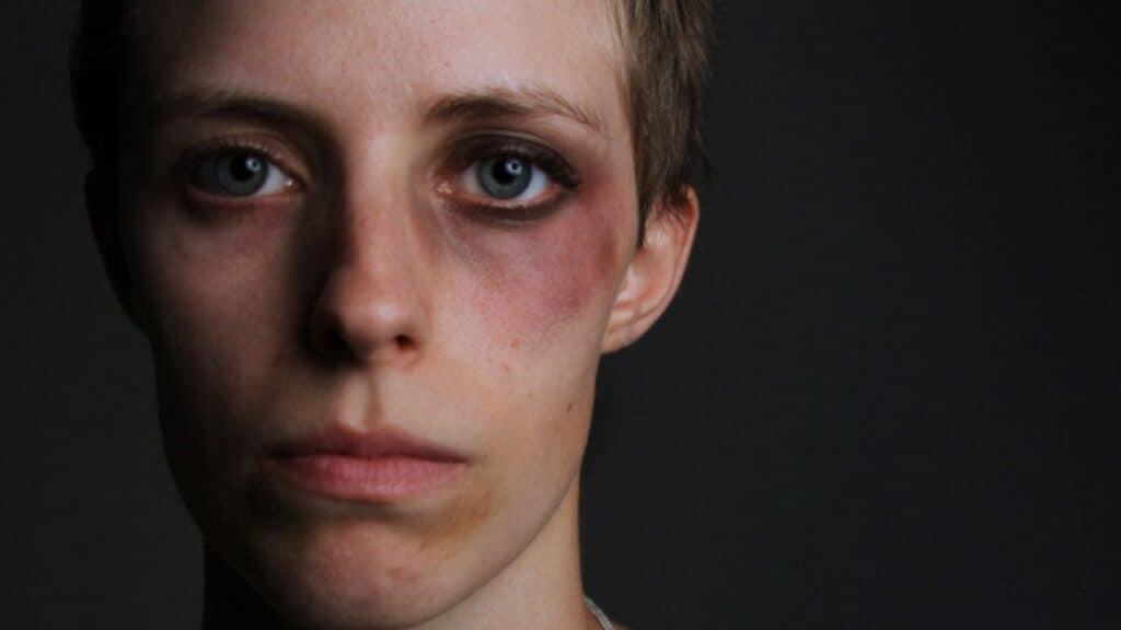 Violenza sulle donne, 1522: nel lockdown raddoppiano le richieste d'aiuto del 119,6%