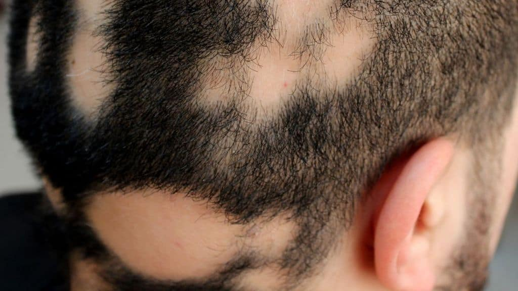 alopecia cranio uomo