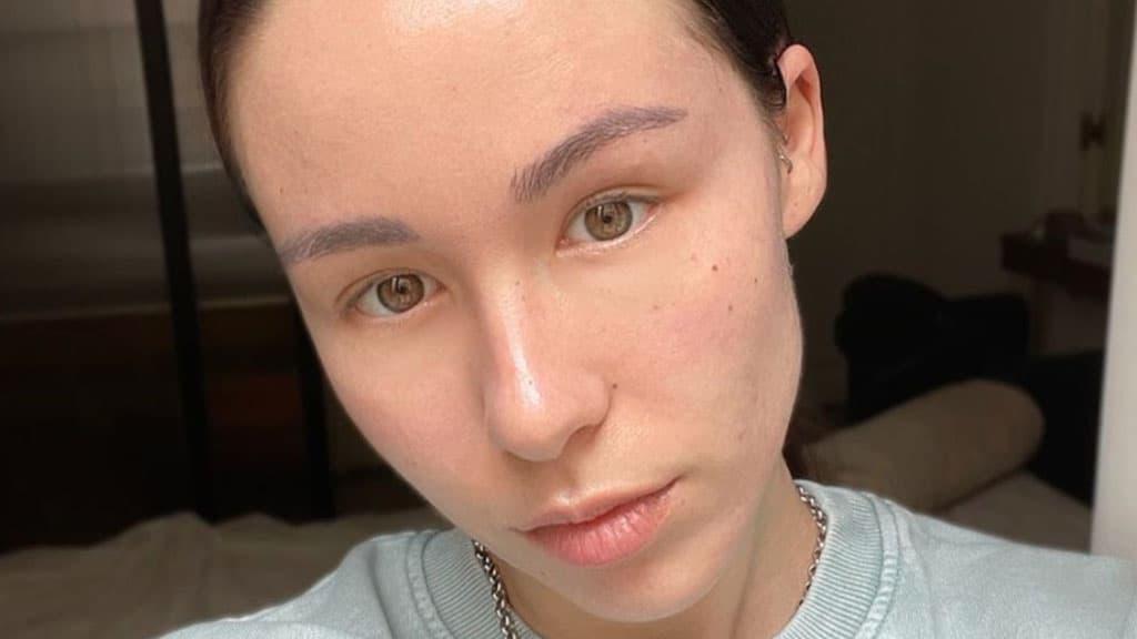 Aurora Ramazzotti lotta contro l'acne