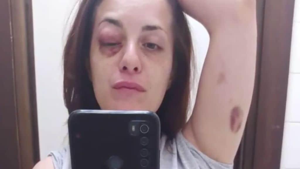 Giuliana Danzè denuncia le violenze subite