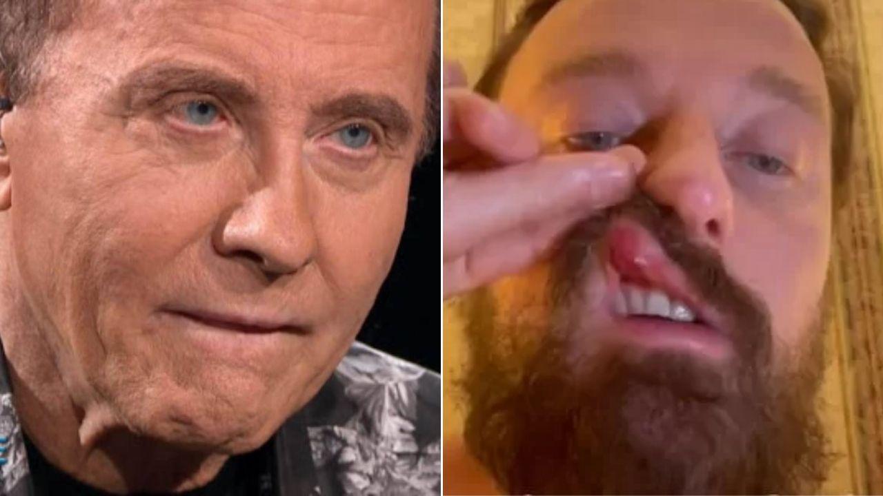 """Francesco Facchinetti picchiato da Conor McGregor, il padre Roby rompe il silenzio: """"Poteva ucciderlo"""""""
